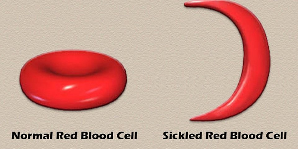 Normal and Sickled red blood cells - Youtube